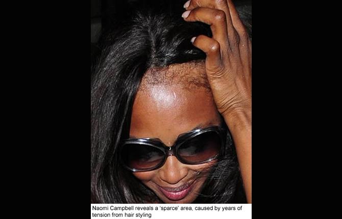 cameroun femmes perte des cheveux chez la femme les meilleurs rem des et traitements crtv. Black Bedroom Furniture Sets. Home Design Ideas